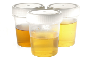 Abstinenznachweis wegen Alkohol: Bei der MPU kann ein Urintest Klarheit bringen.