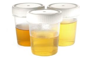 MDMA ist nachweisbar, im Urin sogar bis zu vier Tage.